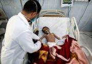85.000 anak di Yaman meninggal akibat kelaparan
